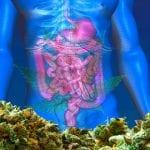 Medicinal Cannabis Focus : Cannabis for Crohns Disease